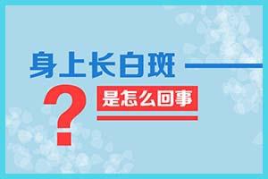 东莞虎门厚街白癜风的诊断依据是什么